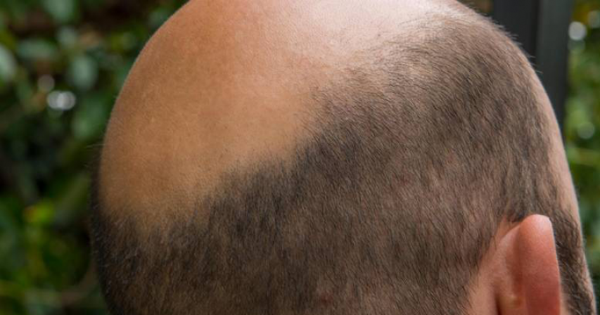 Newly married man hides bald head with wig, wife files police case