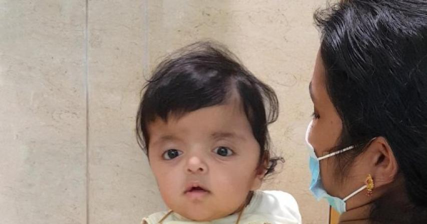Sidra Medicine performs life-saving surgery on baby girl with Apert Syndrome