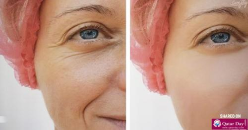 Benefits Of Magnesium For Skin: Miracle Mineral For Beauty Problems