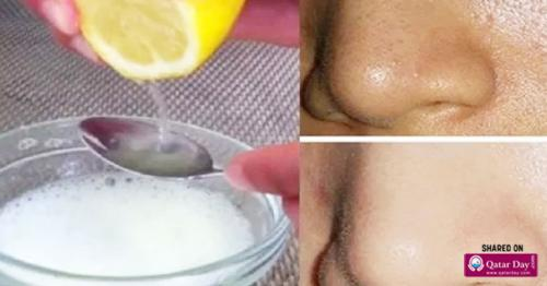 Just by Using 2 Ingredients Your Pores Will Disappear Forever and Your Face Will Be Cleaner Than Ever!