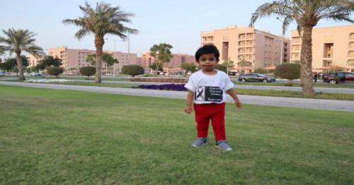 Sidra Medicine saves baby's life with Omphalocele